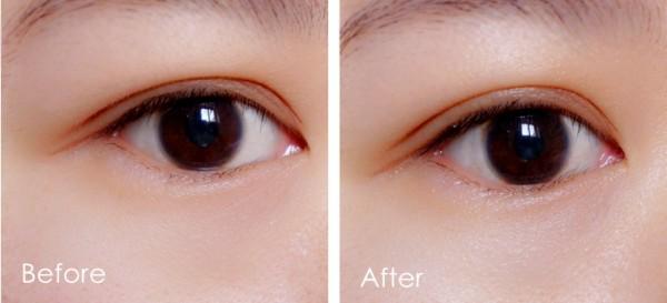【麻团儿】滴滴修护,眼部肌肤UP UP!