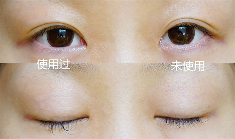 全能真眼霜,打造明眸电眼-----透真全能眼霜