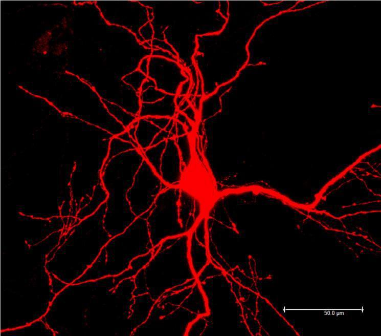 显微镜放大一千倍的 生命美图