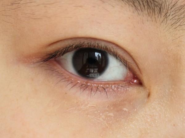 让双眼重赋年轻光彩